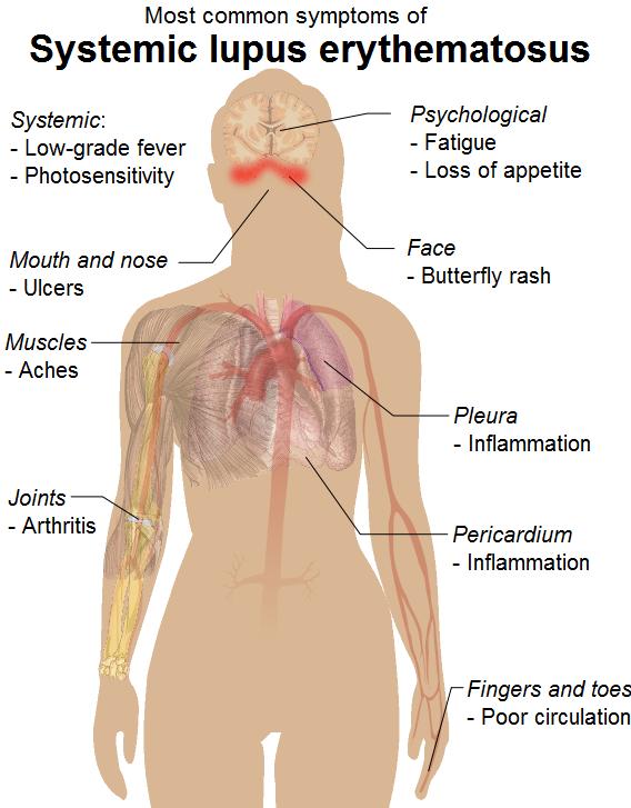 systemic_lupus_erythematosus